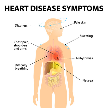 Congestive heart failure: About, Causes, Symptoms, Preventive Measures