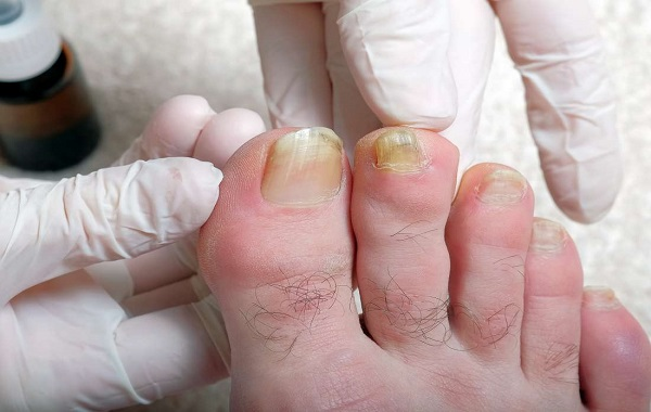Ingrown Toenail: Causes, Home Remedies, Medical Treatments, and Preventive Tips