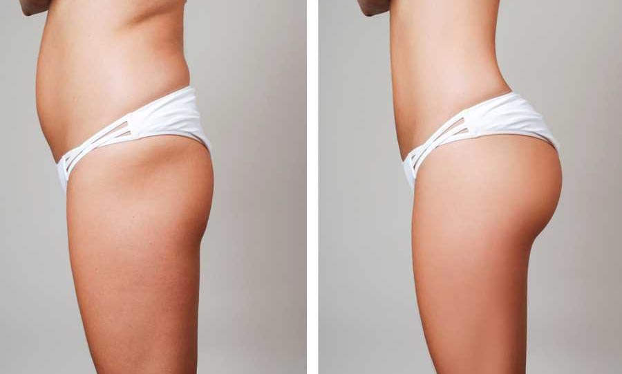 What do you need to know about Brazilian butt lift in Turkey?