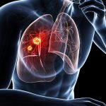 Lung Cancer: Signs, Symptoms, Types and Staging