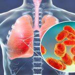 Pneumonia- Symptoms, Types, Diagnosis, Vaccine And Treatment