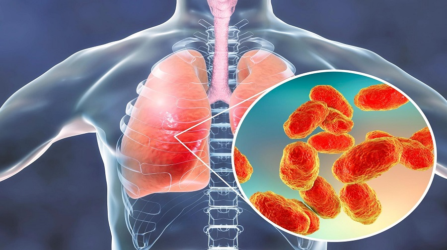 Pneumonia- Symptoms, Types, Diagnosis, Vaccine And Treatment