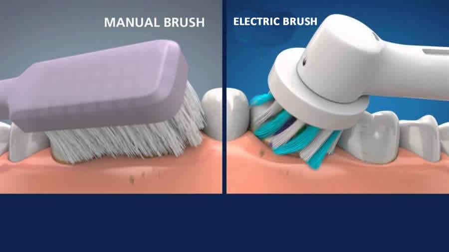 Electric Vs Manual Brushes: Is There Really A Difference In Cleaning Power?