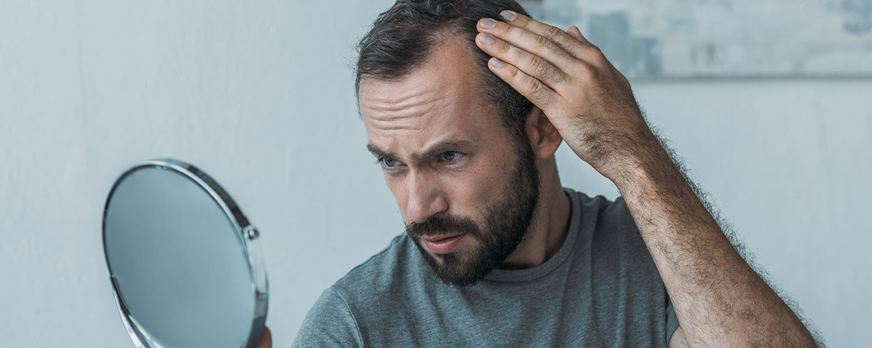 FUE: How Hair Transplants Have Become More Accessible
