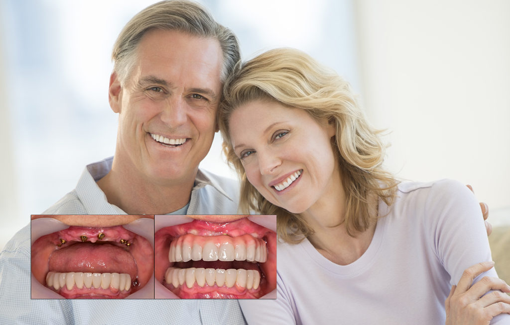 Factors to Consider when Choosing All on Four Implants Option
