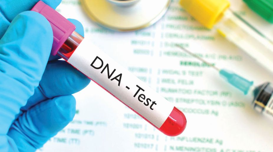 4 Noteworthy Things to Know Before Getting a DNA Test