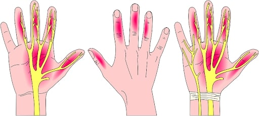 Carpal Tunnel Exercises to Comfort Wrist Pain