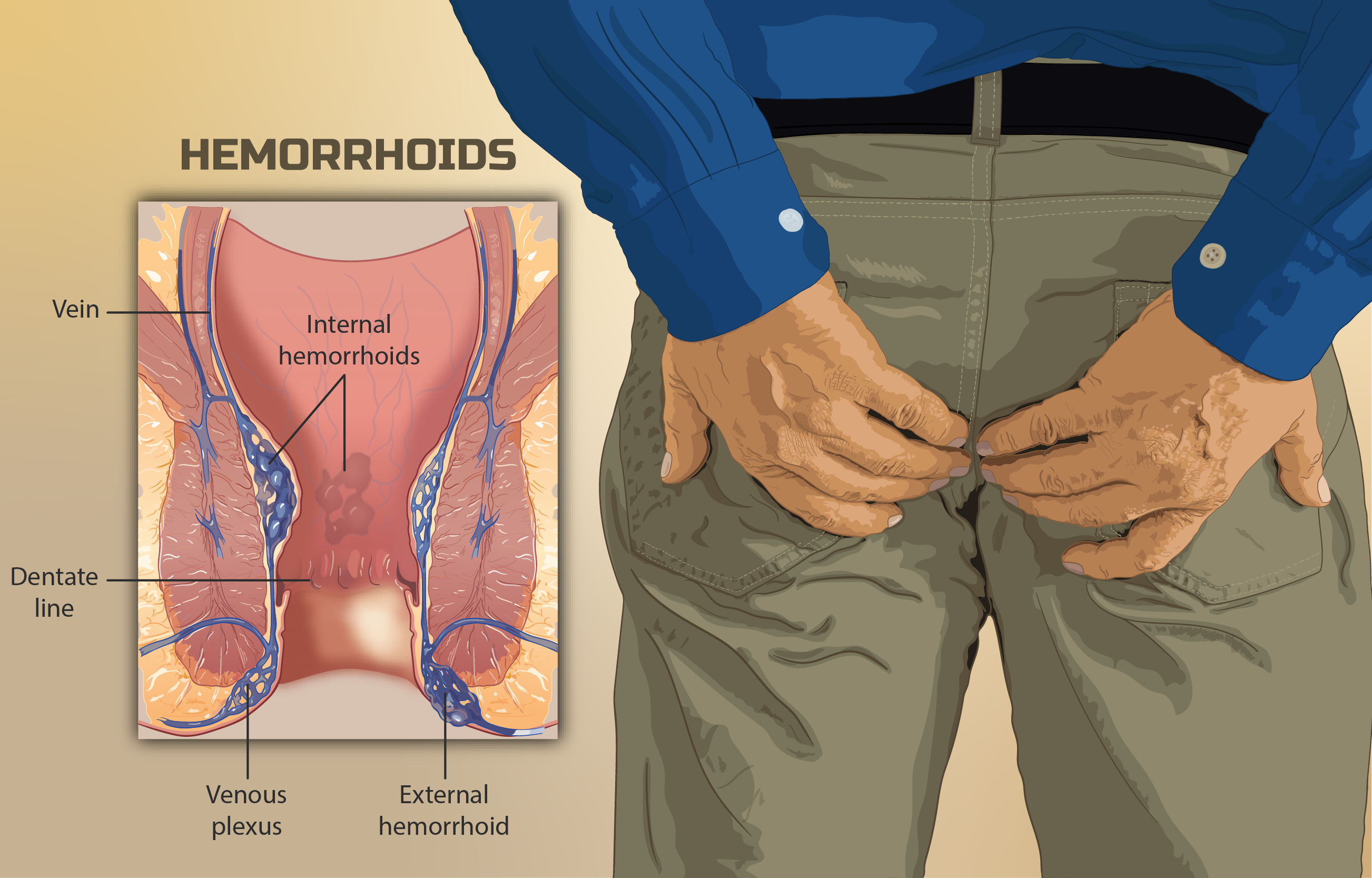 Piles Symptoms: How to Cure Piles Permanently at Home